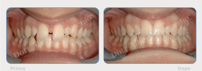 Diastemi-spaziature-fra-i-denti-1