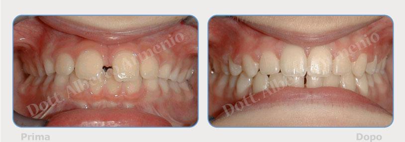 Diastemi-spaziature-fra-i-denti-3