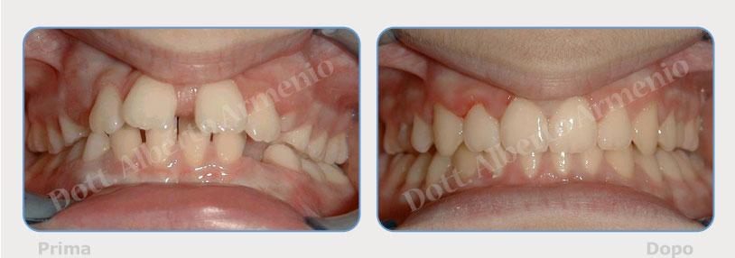 Diastemi-spaziature-fra-i-denti-4