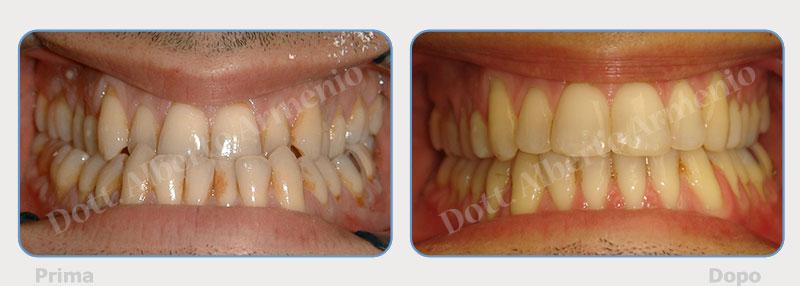 chirurgia-mandibolare-1