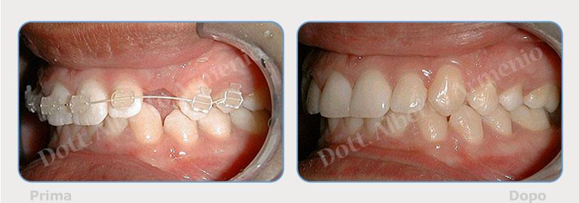 denti-inclusi-1
