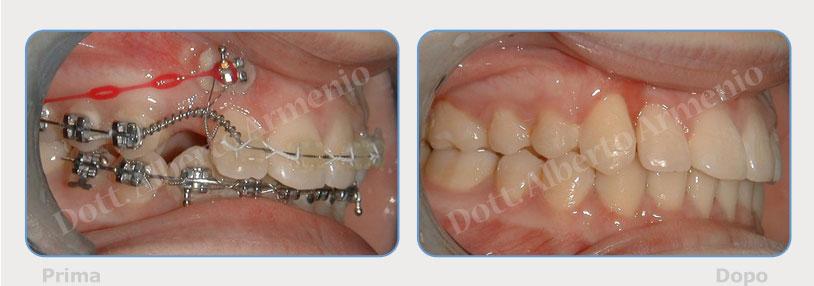 denti-inclusi-2