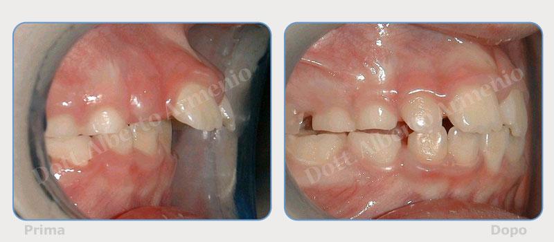 sporgenza-denti-superiori-1