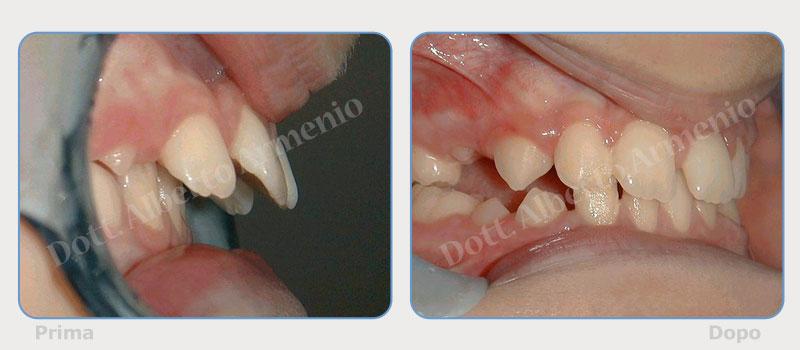 sporgenza-denti-superiori-2